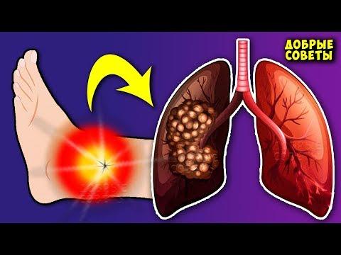 10 неочевидных Симптомов того, что с вашими Лёгкими проблемы