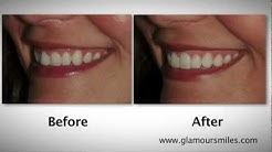 Tooth Whitening and Porcelain Veneers in the Chicago, Illinois area by Brent Engelberg