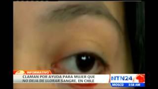 Joven chilena llora lágrimas de sangre, esta es la causa de su extraña condición