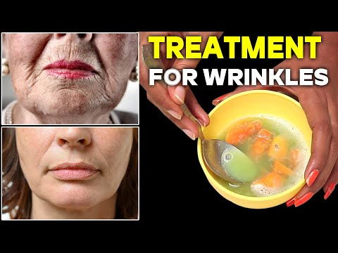 Natural Treatment for Wrinkles | This is the Most Effective Treatment for Wrinkles | Health & Beauty