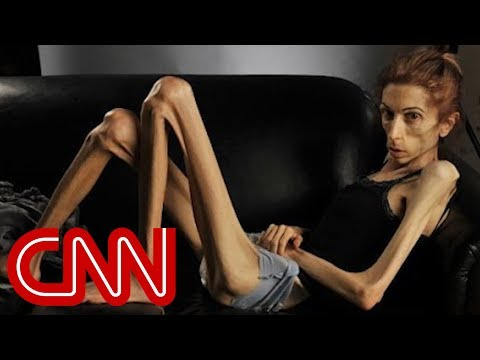 Anorexic picture sex opinion already