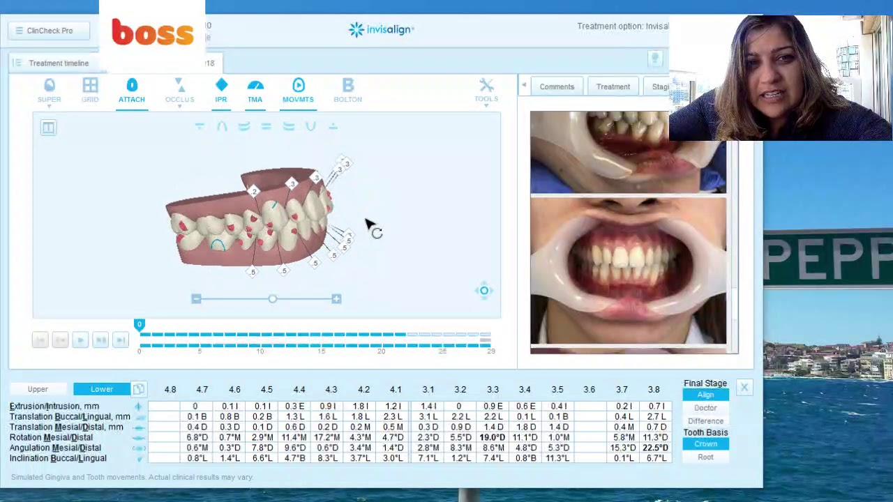 Treatment planning tips for Invisalign Clincheck for dentist coaching by Dr  Vandana Katyal