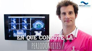Periodontitis: En qué consiste y cómo prevenirla en la Clínica Dental Ferrus de Madrid