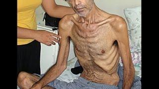 В Йошкар-Оле обманутые дольщики объявили голодовку