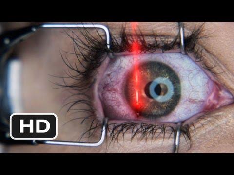 Final Destination 5 #3 Movie CLIP - Laser Eyer Surgery (2011) HD