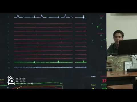Atrial Flutter Simulation Demonstration by Adam Zivin, M.D.