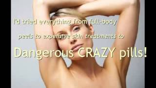 Body Whitening Cream? Find out the best way! Thumbnail