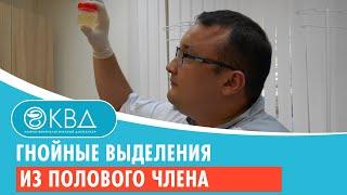 видео Уретрит, выделения из полового члена. Консультации, диагностика, лечение в Волгограде