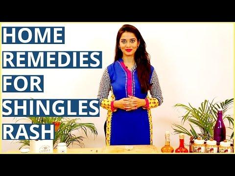 3 Ayurvedic Home Remedies For  SHINGLES RASH TREATMENTS