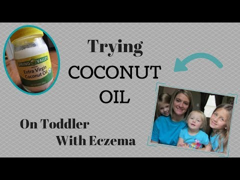 Trying Coconut Oil For Eczema On Toddler | Reducing Redness In Eczema Flare Up
