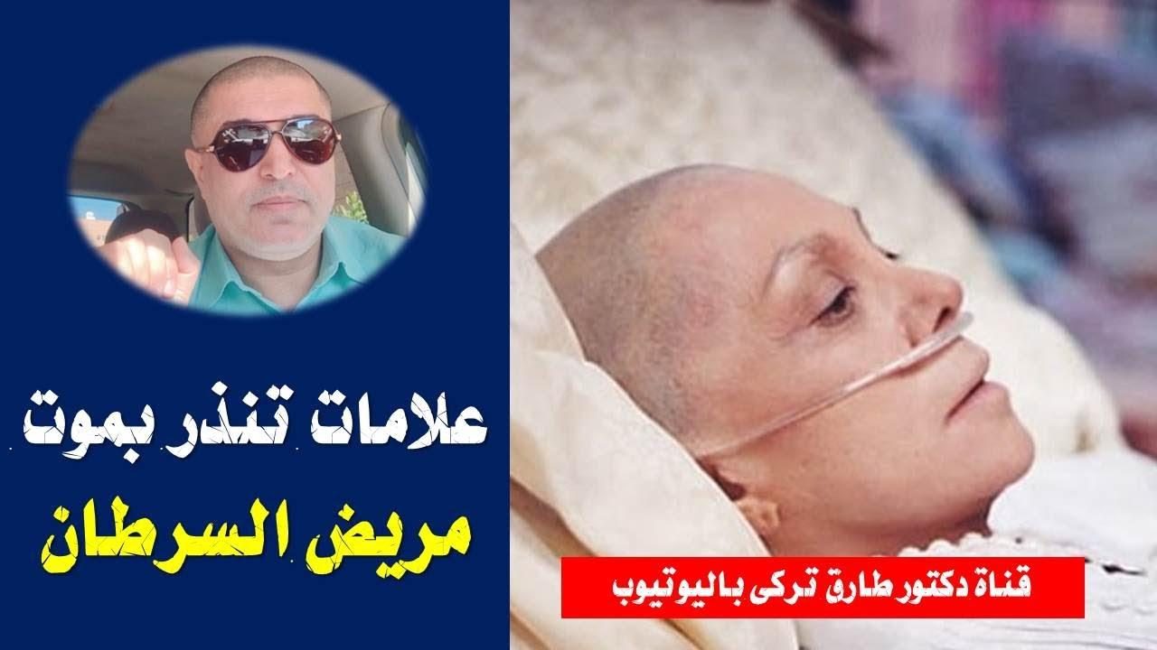 47b416eb4 8 علامات تنذر بأن مريض السرطان موشك على الموت   علامات تنذر بموت مريض  السرطان