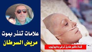 8 علامات تنذر بأن مريض السرطان موشك على الموت | علامات تنذر بموت مريض السرطان
