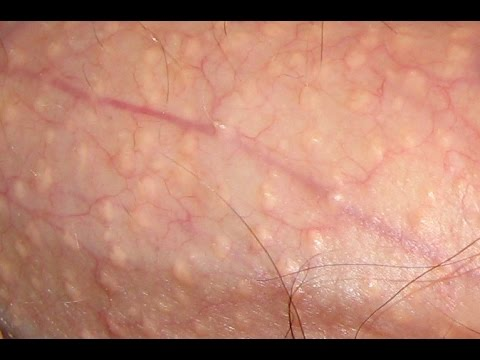 white bumps under skin on penis