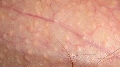 hqdefault - Little White Pimples On Shaft