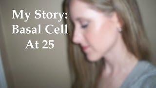 My Story: Basal Cell at 25