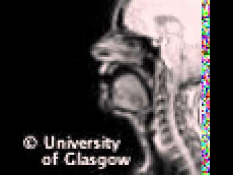 MRI voiced uvular implosive