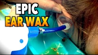 EPIC EARWAX REMOVAL! | Dr. Paul