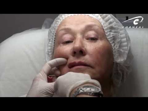 Контурная пластика в ЛИНЛАЙН – коррекция овала лица