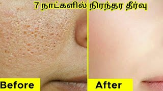 How to get Rid of Large Open Pores permanently in 7 Days |Close Large Open Pores Naturally in 7 Days