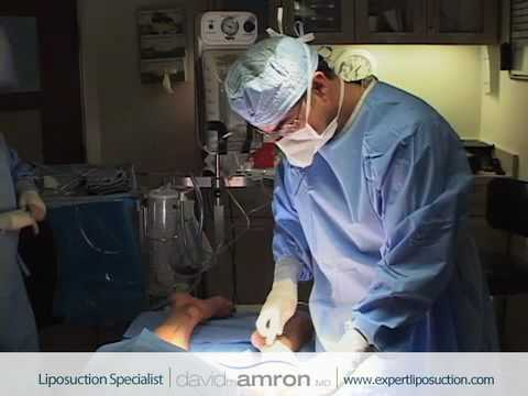 Calf/Ankle Liposuction Surgery Calf/Ankle Lipo Surgeon Dr. David Amron