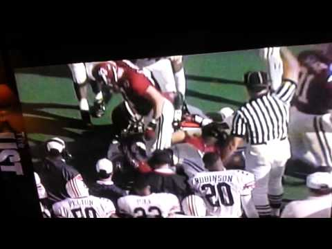 Police Dog Bites Auburn Player