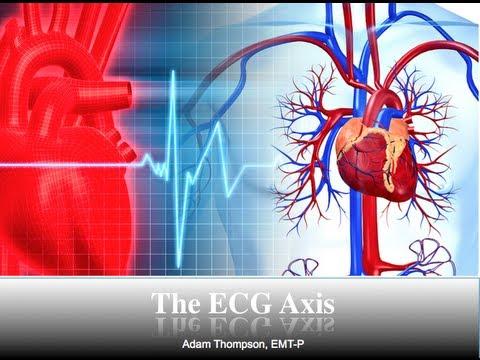 ECG Axis Tutorial: Part 1 - Einthoven's Triangle