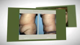 Cosmetic Surgery Reviews Northeast Philadelphia Liposuction Thumbnail