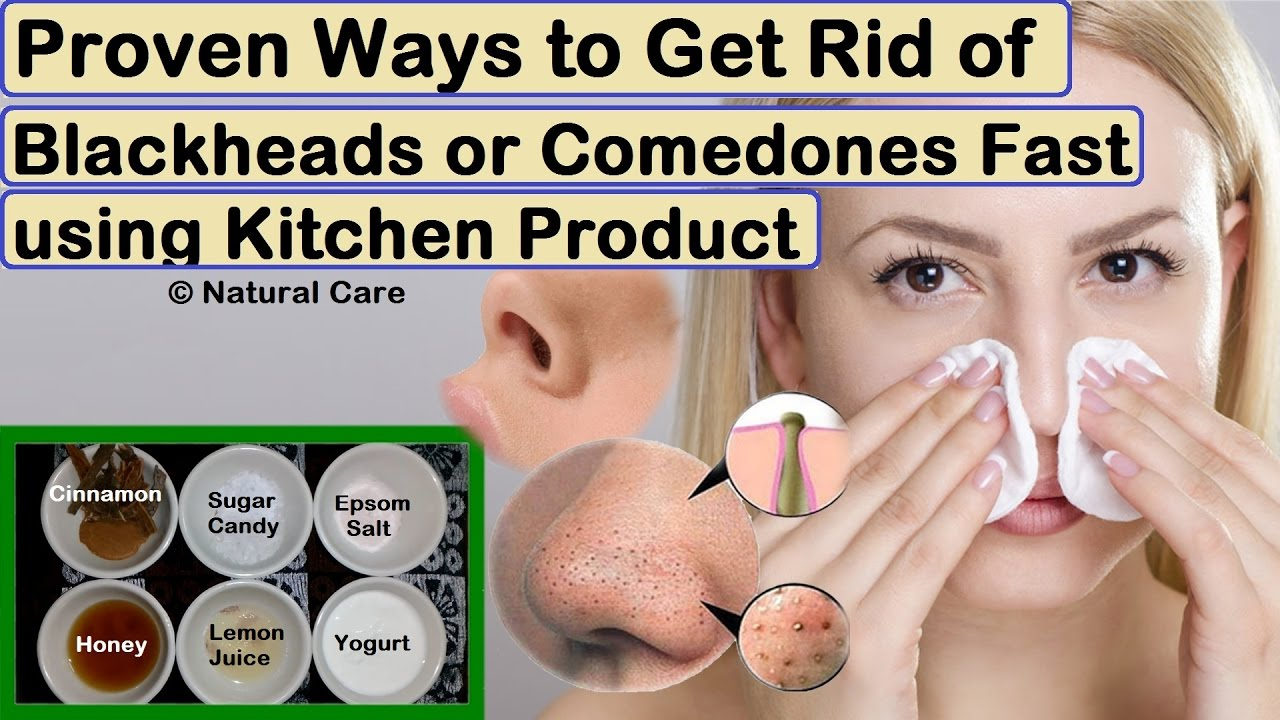 Proven ways to get rid of acne