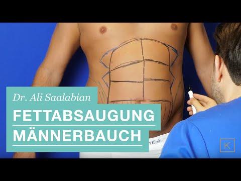 Fettabsaugung und HD Body Contouring: Unterbauch (Mann)