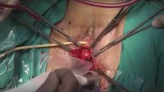 Prolapse Repair with Surelift mesh - Surgical intervention