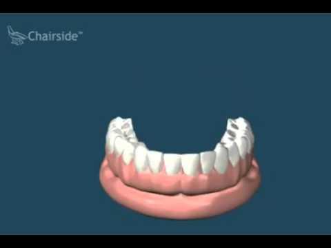 Cъёмные зубные протезы при полном отсутствии зубов