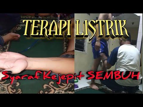 TERAPI SETRUM LISTRIK || PENGOBATAN SYARAF KEJEPIT