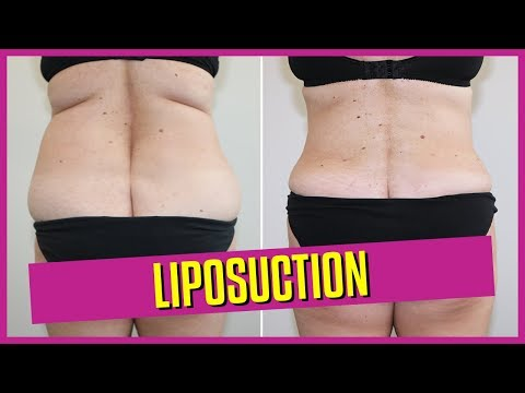 liposuction-surgery-and-fat-transfer-by-dr-eddy-dona