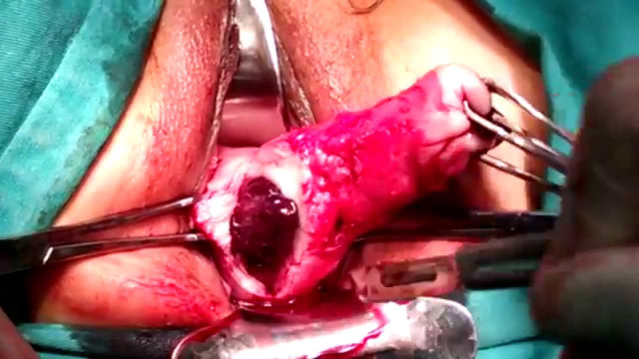 Prolapso uterino y vaginal Tratamiento: Tratamiento