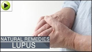 Home Remedies for Lupus
