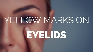 Yellow marks on eyelids, is it a Xanthoma Plaque?