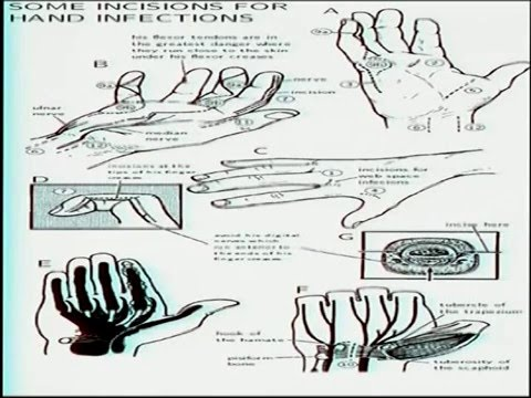 Hand Infections - YouTube