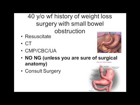 Caring for Patients with a History of Weight Loss Surgery