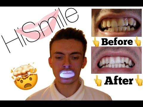 DOES IT ACTUALLY WORK? || HISMILE REVIEW