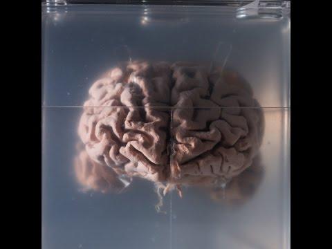 Have we got Alzheimer's all wrong? Hqdefault