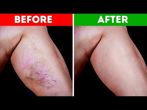 Download Youtube: If You Have High Blood Pressure or Varicose Veins, Start Doing These