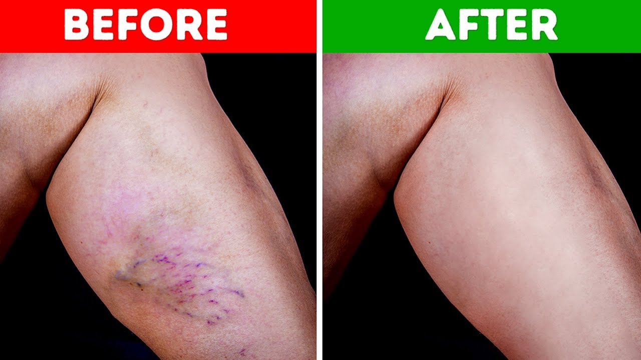 reduce spider veins