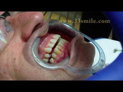 video-of-prepless-veneers-procedure-by-dr.-john-moore-of-cosmetic-dental-associates