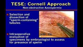 Dr. Peter N. Schlegel: Microdissection TESE:Sperm Retrieval in Non-obstructive Azoospermia (2007)