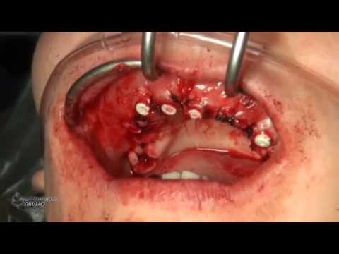 Dental Case 05 - Dr. Alexander V. Antipov
