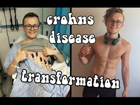 hqdefault transformation crohns disease to gym nut youtube,Crohns Meme
