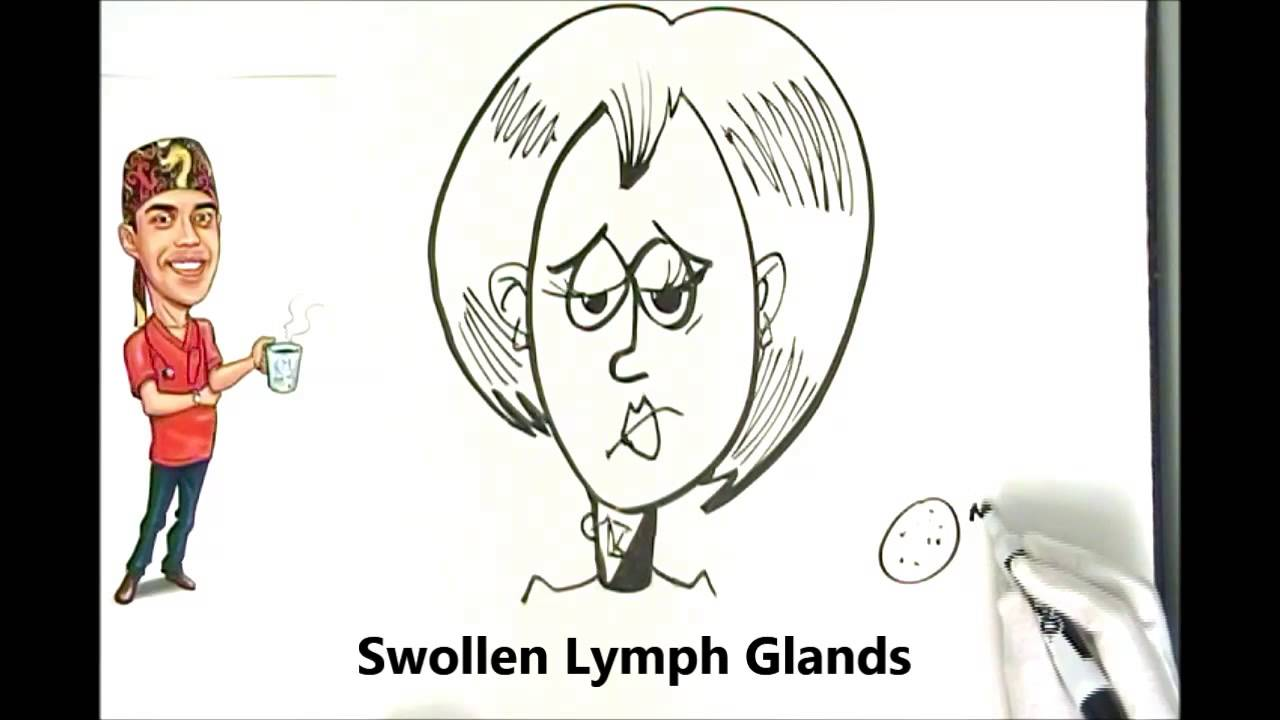 Swollen Lymph Nodes And Neck Glands Explained Simply Youtube