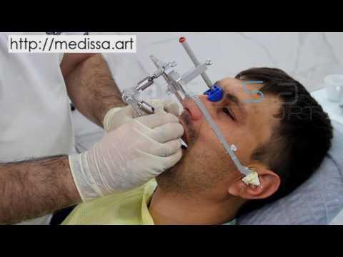 Применение лицевой дуги Amann Girrbach (Аман Гирбах) в стоматологии для определения линии улыбки