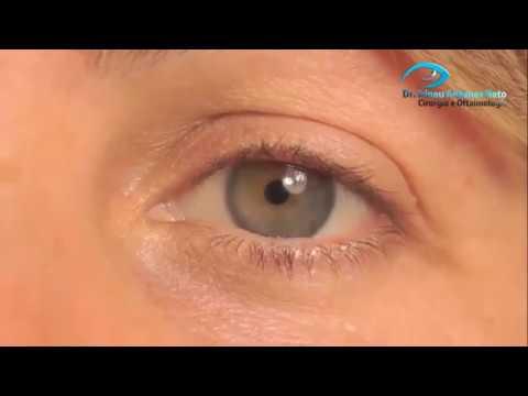 f9f103f60 Anestesia e pós operatório da cirurgia refrativa a laser miopia em Curitiba