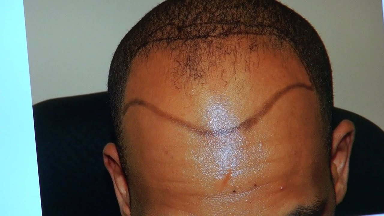 haircuts for balding black men black bald hair transplant fue result black receding 4497 | maxresdefault